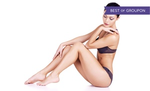 Rochester Laser Center: $99 for Six Laser Hair-Removal Sessions for Small Area at Rochester Laser Center ($750 Value)