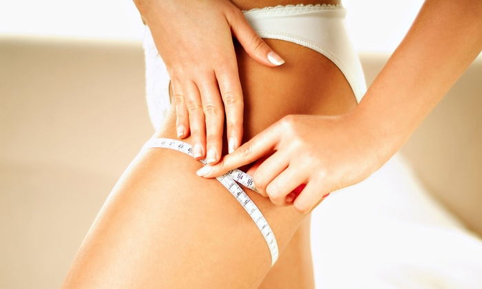 NV Medical Spa - Woodbridge: $99 for 12 Accent Elite Cellulite-Reduction and Slimming Treatments from NV Medical Spa ($3,000 Value)