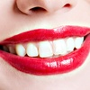 Up to 57% Off Complete Invisalign Treatment