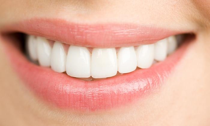 NDKデンタル真法院 - NDKデンタル真法院: 理想の白い歯と、お口のエチケットも≪ポリリンサンホワイトニング+PMTC(上下8歯・計16歯)/1回分 or 3回分≫ @NDKデンタル真法院