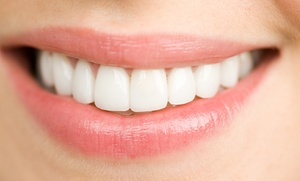 Lifepoint Dental Partners: $2,499 for Six-Month-Smile Cosmetic Braces at Lifepoint Dental Partners ($5,000 Value)