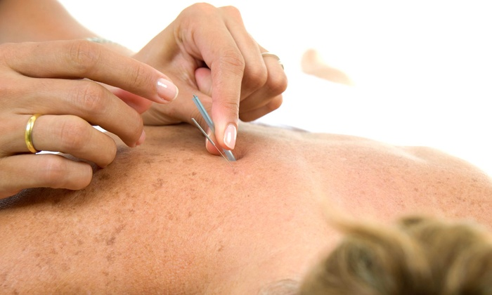 Point Flow Acupuncture - St. Charles: Three or Five Acupuncture Treatments at Point Flow Acupuncture (Up to 65%)