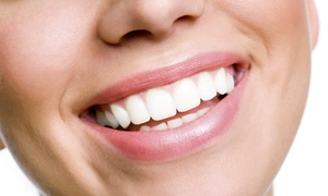 Tranquility Day Spa: 40- or 60-Minute Teeth-Whitening Session at Tranquility Day Spa (Up to 60% Off)