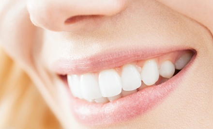 One or Two 30-Minute LED Teeth-Whitening Sessions at Ocean Breeze Spa (Up to 80% Off)