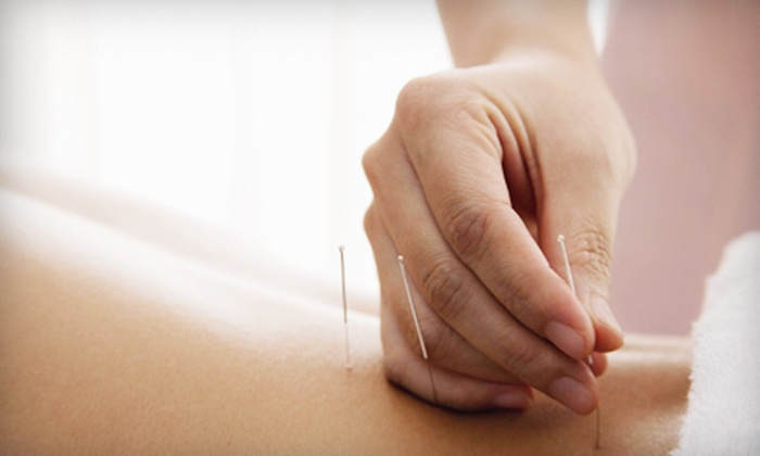 SoulBody Medicine - Downtown Redmond: One, Two, or Four Acupuncture or Needleless Microcurrent-Therapy Treatments at SoulBody Medicine (Up to 55% Off)
