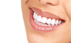 GSM Medical Center: Teeth Whitening with Optional Scaling and Polishing at GSM Medical Center*