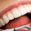 Up to 76% Off Dental Exam and Teeth Whitening at Andreas Bessenroth DMD