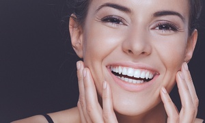 Sonria Dental: £79 for a Laser Teeth Whitening Session at Sonria Dental (Up to 84% Off)