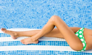 FUN by Michelle: Six Laser Hair-Removal Treatments at FUN by Michelle (Up to 87% Off). Five Options Available.