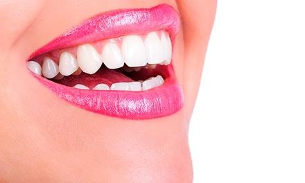 Limpieza bucal con fluorización por 9,95 € y con 1 o 2 sesiones de blanqueamiento led desde 59,95 € en 10 centros