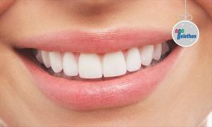 Dott. Massimo Carlini: Visita, pulizia denti, sbiancamento Led e otturazione (sconto fino a 80%)