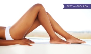 Four Seasons Laser Center: Up to 57% Off Vascular Removal at Four Seasons Laser Center