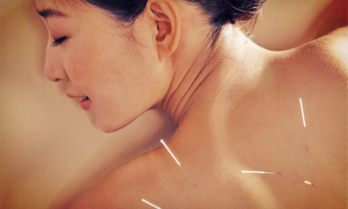 Kumo Acupuncture and Oriental Medicine - Multnomah: $225 for 10 Acupuncture Sessions with an Initial Consultation at Kumo Acupuncture and Oriental Medicine ($500 Value)