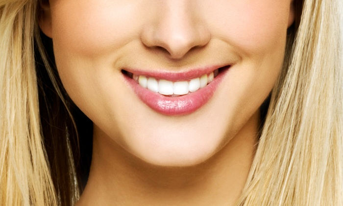 Twin Cities Modern Dentistry - Minnetonka - Hopkins: $2,799 for Invisalign and Teeth Whitening at Twin Cities Modern Dentistry ($6,350 Value)