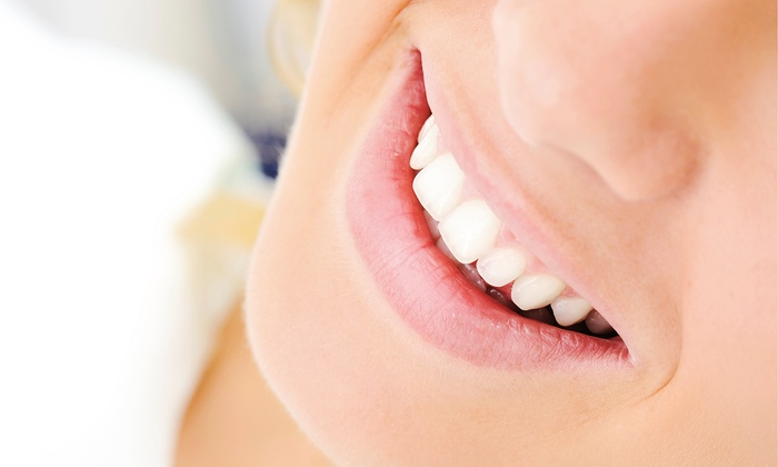 Michaelis Dentistry - Northside: $150 for One Professional Take-Home Teeth-Whitening Kit at Michaelis Dentistry ($300 Value)