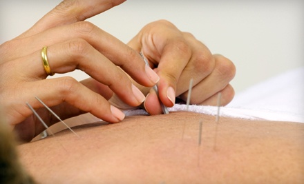 3, 5, or 10 Acupuncture Treatments at Acupuncture and Hypnosis (Up to 74% Off)