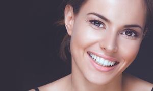 CLINICA DENTAL FRANCHY ROCA: 1 o 2 sesiones de blanqueamiento dental LED y limpieza bucal desde 49,90 € en Clínica Dental Franchy Roca