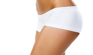 Athenix Body Sculpting Institute: $163 for Three Body-Contouring and Cellulite Treatments at Athenix Body Sculpting Institute ($750 Value)