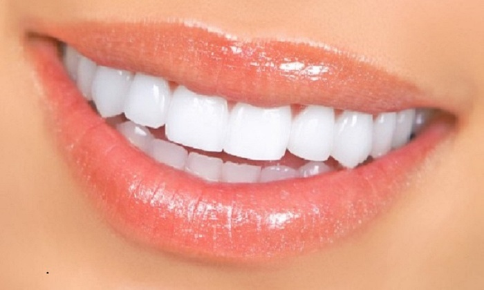 Kalm Dental Spa - Downtown Scottsdale: $40 for Dental Exam with Cleaning, X-Rays, and Laser Teeth Whitening at KALM Dental Spa