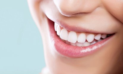 image for $103 for a 60-Minute Laser <strong>Teeth-Whitening</strong> Treatment at My Pretty Smile ($199 Value)