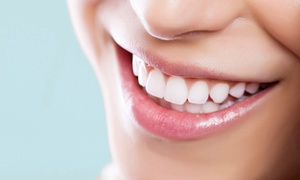 Smile Art: Teeth Cleaning, Scale and Polish or Laser Whitening or Both at Smile Art*