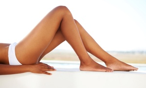 Laurie S. Molinda, M.D.: Up to 62% Off spider vein removal at Laurie S. Molinda, M.D.