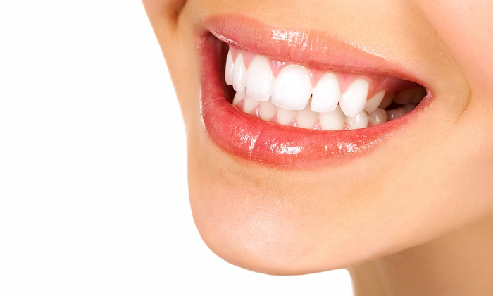 Bleach Bright USA - Multiple Locations: $95 for In-Office Teeth Whitening from Bleach Bright USA ($500 Value)