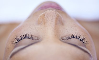 $87 for One Micro-Needling Treatment for the Full <strong>Face</strong> at Well Kneaded Day Spa ($300 Value)