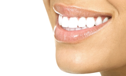 One or Three Teeth-Whitening Treatments at Sunrise Tanning (Up to 62% Off)