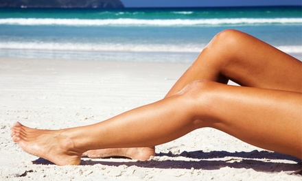 Laser Hair Removal on a Small, Medium, or Large Area at Sienna Spa and Tanning (Up to 81% Off)