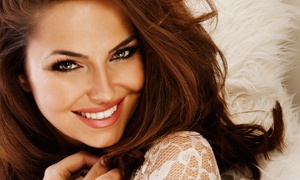 Spa Sydell: $115 for 15 Units of Botox at Spa Sydell Luxe ($240 Value)