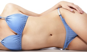 Holistic Health Centre Brisbane - IPL Clinic: IPL Hair Removal on Two Small Areas - Three ($89) or Six Sessions ($169) at Holistic Health Centre (Up to $1,200 Value)