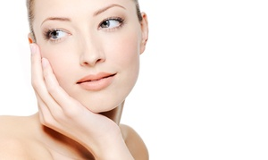 EuroSpa Médica: $89 for a Microlaser Peel at EuroSpa Médica ($500 Value)