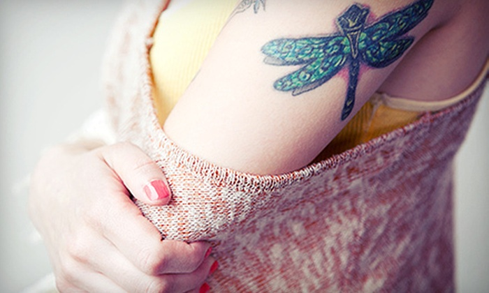 My Spa & Boutique - Multiple Locations: Three Laser Tattoo-Removal Sessions for an Area of Up to 3, 6, or 12 Square Inches at My Spa & Boutique (Up to 75% Off)