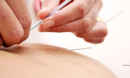 One or Two 60-Minute Acupuncture Sessions at Longwood Healing Center and Spa (Up to 79% Off)