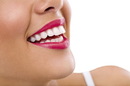 Up to 69% Off on Teeth Whitening - In-Office - Branded (Zoom, Brite Smile) at The Body Denn