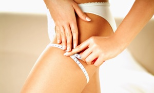 Beach Lazer: Six or Nine Zerona Body-Contouring Treatments at Beach Lazer (Up to 63% Off)