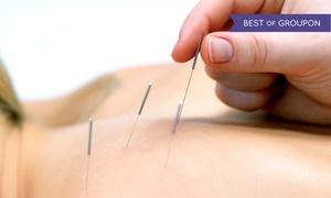 The Bannard Center: One or Three 30-Minute Acupuncture Sessions at The Bannard Center (Up to 65% Off)