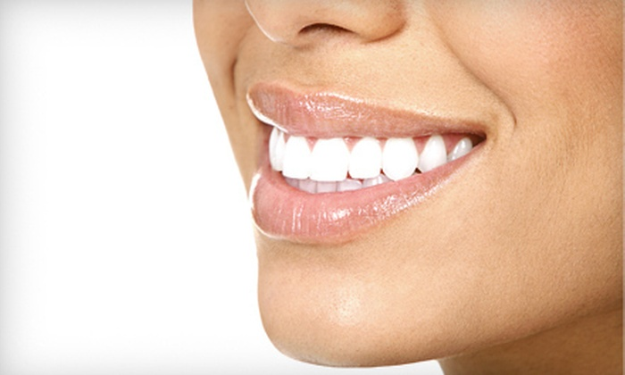 Central Park Dental Spa - Midtown : $139 for Zoom! Teeth Whitening with Consultation and Exam at Central Park Dental Office ($750 Value)