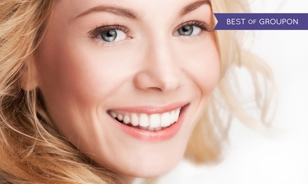 Dental Exam, Scale, Polish (€39) and Fluoride Varnish (€59) at Novadent (Up to 65% Off)
