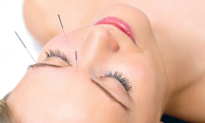 Firefly Acupuncture - Plymouth - Wayzata: Consultation with One or Three Acupuncture Sessions at Firefly Acupuncture (Up to 73% Off)