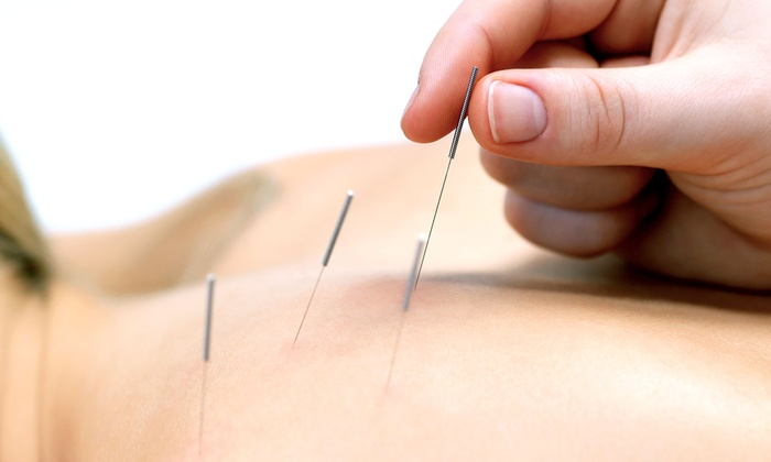 Angie's Acupuncture - Seymour: One- or Two-Hour Acupuncture Treatment with Optional Cupping at Angie's Acupuncture (Up to 70% Off)