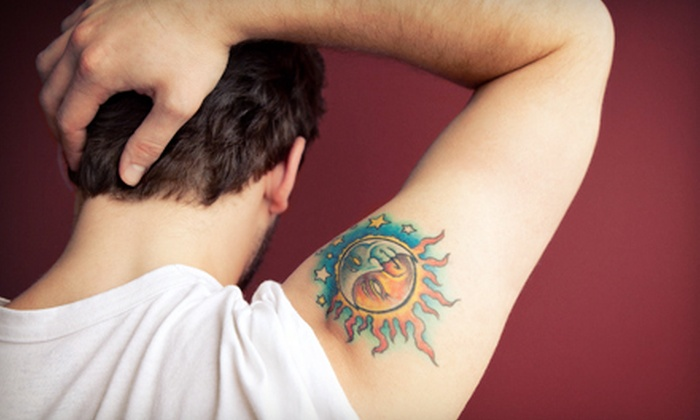 Memphis Laser Clinic - Walnut Grove - Shelby Farms PD: Three Laser Tattoo-Removal Treatments for a 6- or 10-Square-Inch Area at Memphis Laser Clinic (Up to 52% Off)