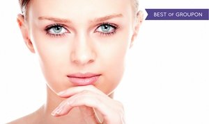 Laser Loft: One Chemical Peel or Two Chemical Peels with Optional Laser Acne Treatment at Laser Loft (Up to 72% Off)