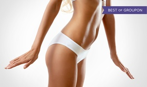 Hot Mama Body Sculpting Oregon LLC: Three or Five Ultrasound Body-Sculpting Treatments at Hot Mama Body Sculpting Portland (Up to 90% Off)