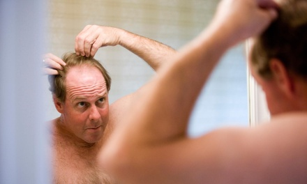$400 for $800 Worth of Hair Restoration  Scalpa Center
