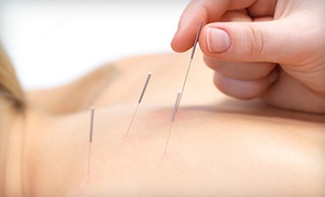 Perez Family Chiropractic: Two or Four Acupuncture Sessions at Perez Family Chiropractic (Up to 75% Off)