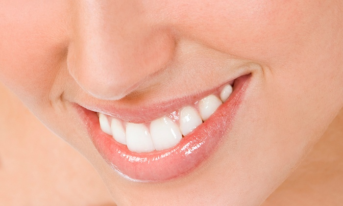 Whiteeth Esthetic Dentistry - Greenbelt: $35 for a Dental Exam with Cleaning and X-rays at Whiteeth Esthetic Dentistry ($270 Value)
