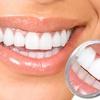 80% Off Zoom! Teeth Whitening