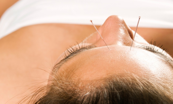 Ridgegate Acupuncture - Doylestown: One or Three Acupuncture Treatments at Ridgegate Acupuncture (Up to 71% Off)